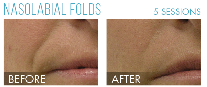 Hydrafacial before after 5