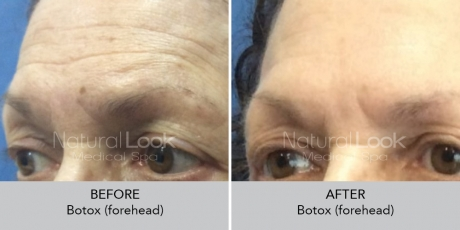 Botox NaturalLookBeforeAfterphotos