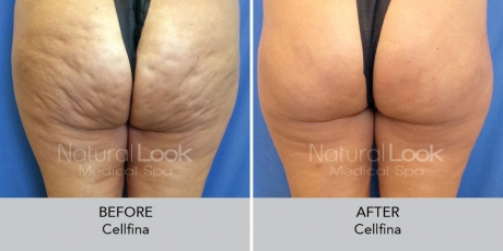Cellfina NaturalLookBeforeAfterphotos2 1