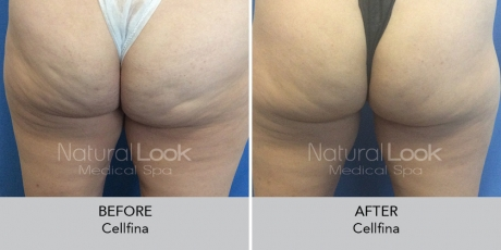Cellfina NaturalLookBeforeAfterphotos3 1