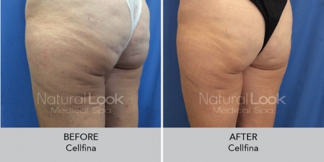 Cellfina NaturalLookBeforeAfterphotos4 1