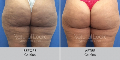 Cellfina NaturalLookBeforeAfterphotos5 1