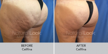 Cellfina NaturalLookBeforeAfterphotos6 1