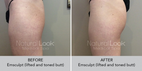 Emsculpt NaturalLookBeforeAfterphotos