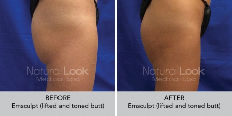 Emsculpt NaturalLookBeforeAfterphotos2