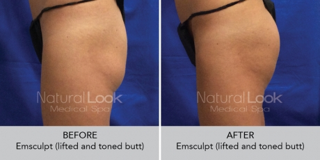 Emsculpt NaturalLookBeforeAfterphotos3