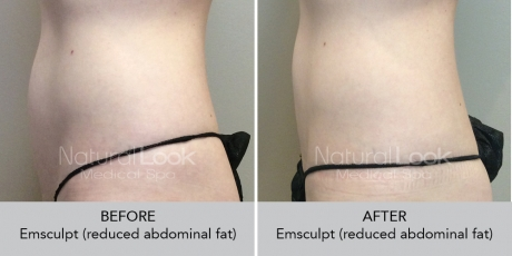 Emsculpt NaturalLookBeforeAfterphotos4
