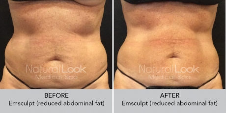 Emsculpt NaturalLookBeforeAfterphotos5