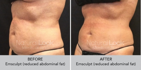 Emsculpt NaturalLookBeforeAfterphotos7