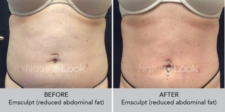Emsculpt NaturalLookBeforeAfterphotos8