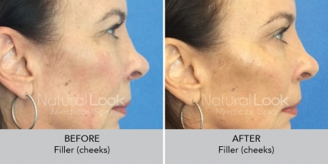 Filler cheeks NaturalLookBeforeAfterphotos