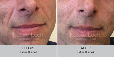 Filler face NaturalLookBeforeAfterphotos