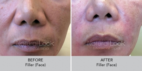 Filler face NaturalLookBeforeAfterphotos2