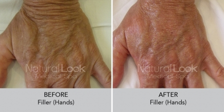 Filler hands NaturalLookBeforeAfterphotos