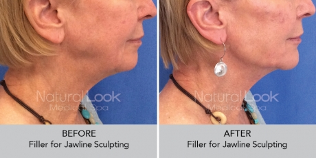 Filler jawline NaturalLookBeforeAfterphotos