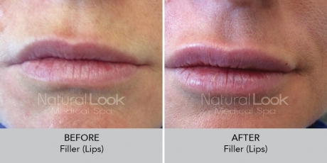 Filler lips NaturalLookBeforeAfterphotos