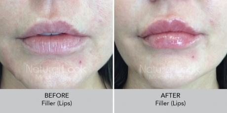 Filler lips NaturalLookBeforeAfterphotos10