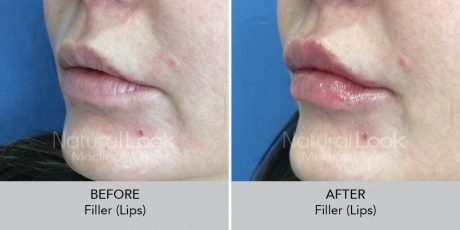Filler lips NaturalLookBeforeAfterphotos11