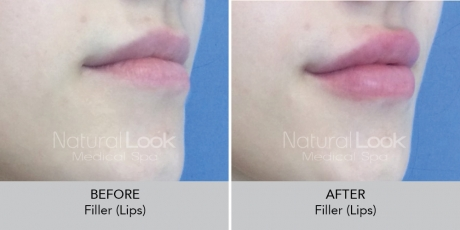 Filler lips NaturalLookBeforeAfterphotos2