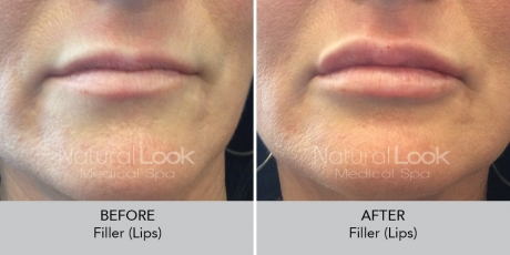 Filler lips NaturalLookBeforeAfterphotos3