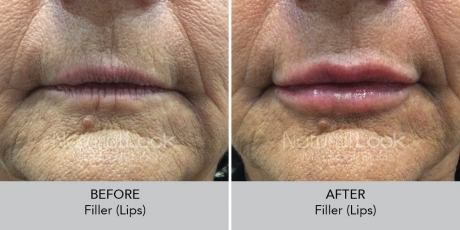 Filler lips NaturalLookBeforeAfterphotos4