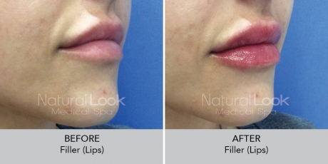 Filler lips NaturalLookBeforeAfterphotos6