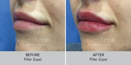 Filler lips NaturalLookBeforeAfterphotos7