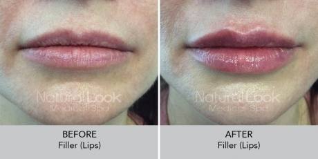 Filler lips NaturalLookBeforeAfterphotos8