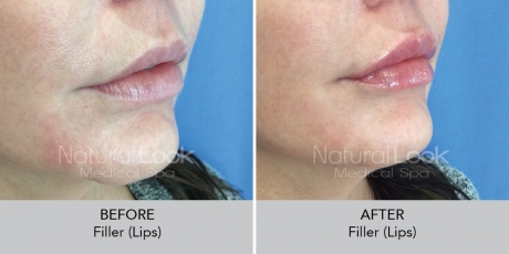 Filler lips NaturalLookBeforeAfterphotos9