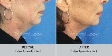 Filler mandibular NaturalLookBeforeAfterphotos