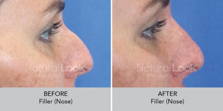 Filler nose NaturalLookBeforeAfterphotos