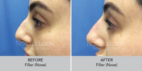 Filler nose NaturalLookBeforeAfterphotos2