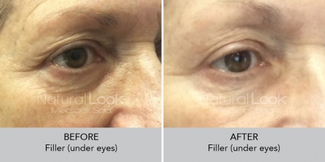 Filler undereyes NaturalLookBeforeAfterphotos