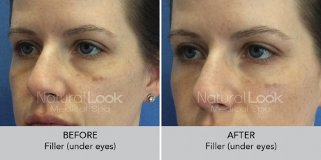 Filler undereyes NaturalLookBeforeAfterphotos2