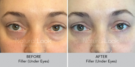 Filler undereyes NaturalLookBeforeAfterphotos3