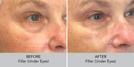 Filler undereyes NaturalLookBeforeAfterphotos4