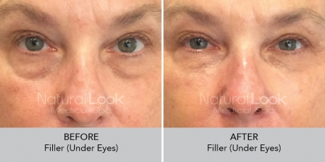 Filler undereyes NaturalLookBeforeAfterphotos5