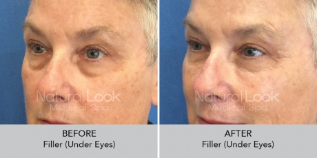 Filler undereyes NaturalLookBeforeAfterphotos6