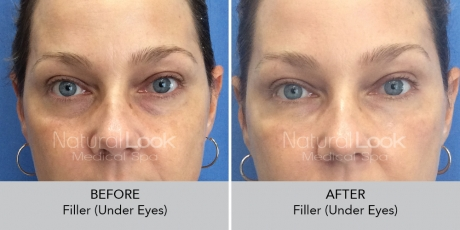 Filler undereyes NaturalLookBeforeAfterphotos7