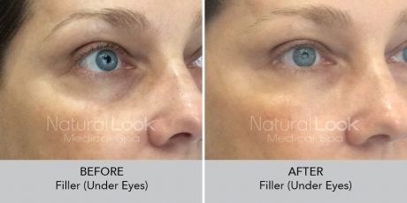 Filler undereyes NaturalLookBeforeAfterphotos8