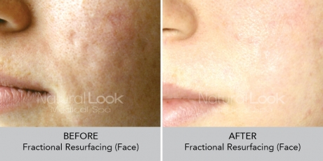 FractionalResurfacing NaturalLookBeforeAfterphotos