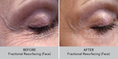 FractionalResurfacing NaturalLookBeforeAfterphotos2