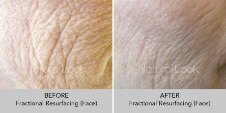 FractionalResurfacing NaturalLookBeforeAfterphotos3