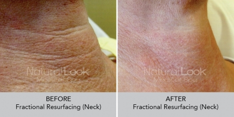 FractionalResurfacing NaturalLookBeforeAfterphotos4
