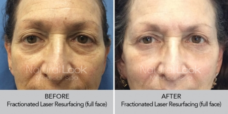 FractionalResurfacing NaturalLookBeforeAfterphotos5