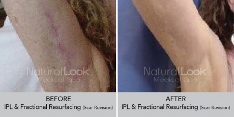 IPLFractionalResurfacing NaturalLookBeforeAfterphotos