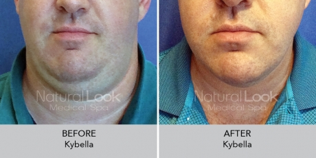 Kybella NaturalLookBeforeAfterphotos
