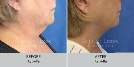 Kybella NaturalLookBeforeAfterphotos2