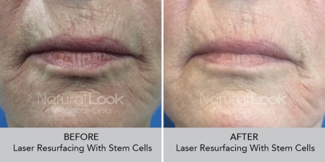 LaserResurfactingwstemcell NaturalLookBeforeAfterphotos