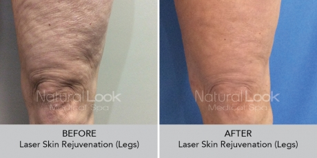 LaserSkinRejuvenation NaturalLookBeforeAfterphotos